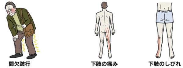脊柱管狭窄症.pngのサムネール画像のサムネール画像