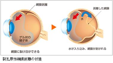 原因 網膜 剥離